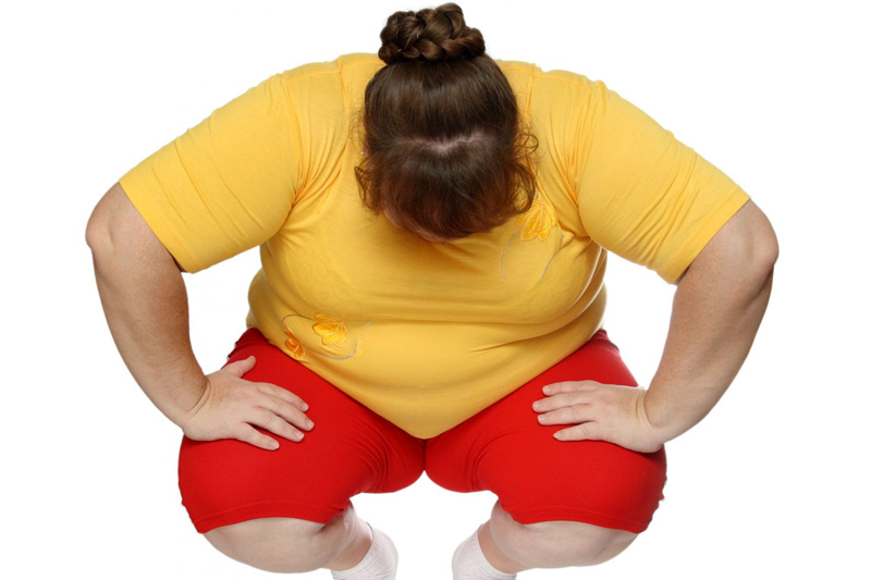 gastric-sleeve-from-mission